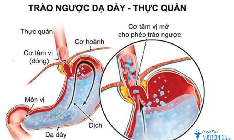bệnh trào ngược dạ dày thực quản