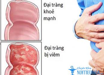 triệu chứng nào cho thấy bạn đã mắc bệnh viêm đại tràng